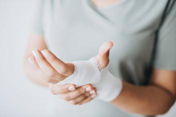 Wound dressing Hand Scio Zinc ointment